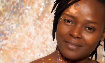 OGO MADUEWESI- Laying the issues bare about Vitiligo
